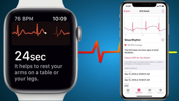 How-to-Use-ECG-on-Apple-Watch-Ser.2e16d0ba.fill-1280x720.jpg