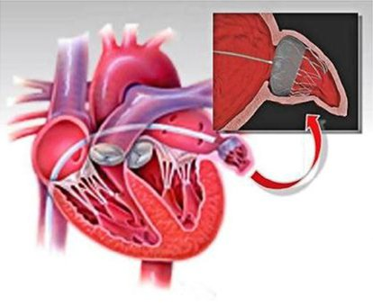 Lukning-af-venstre-forkammers-hjerteøre-P3.jpg
